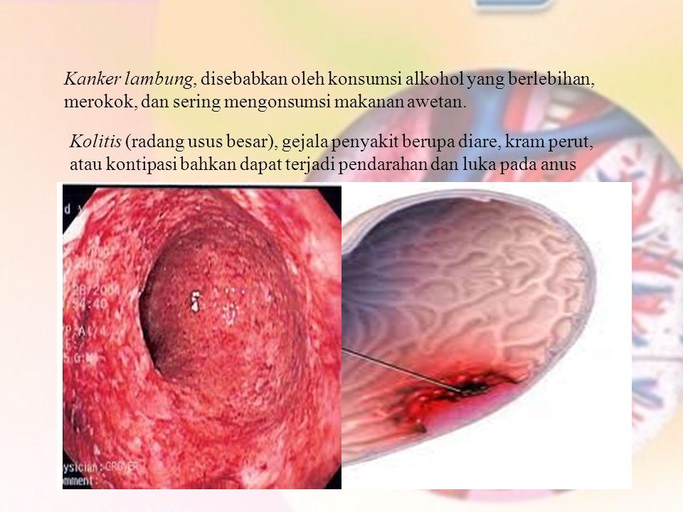 Kanker lambung, disebabkan oleh konsumsi alkohol yang berlebihan, merokok, dan sering mengonsumsi makanan awetan.