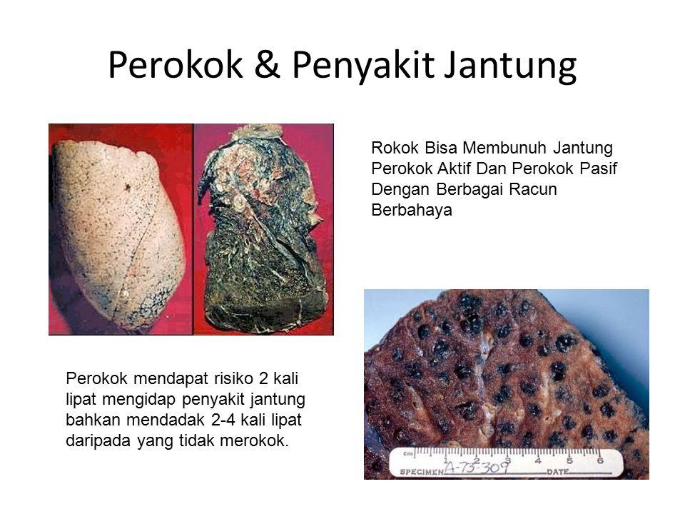 Perokok & Penyakit Jantung