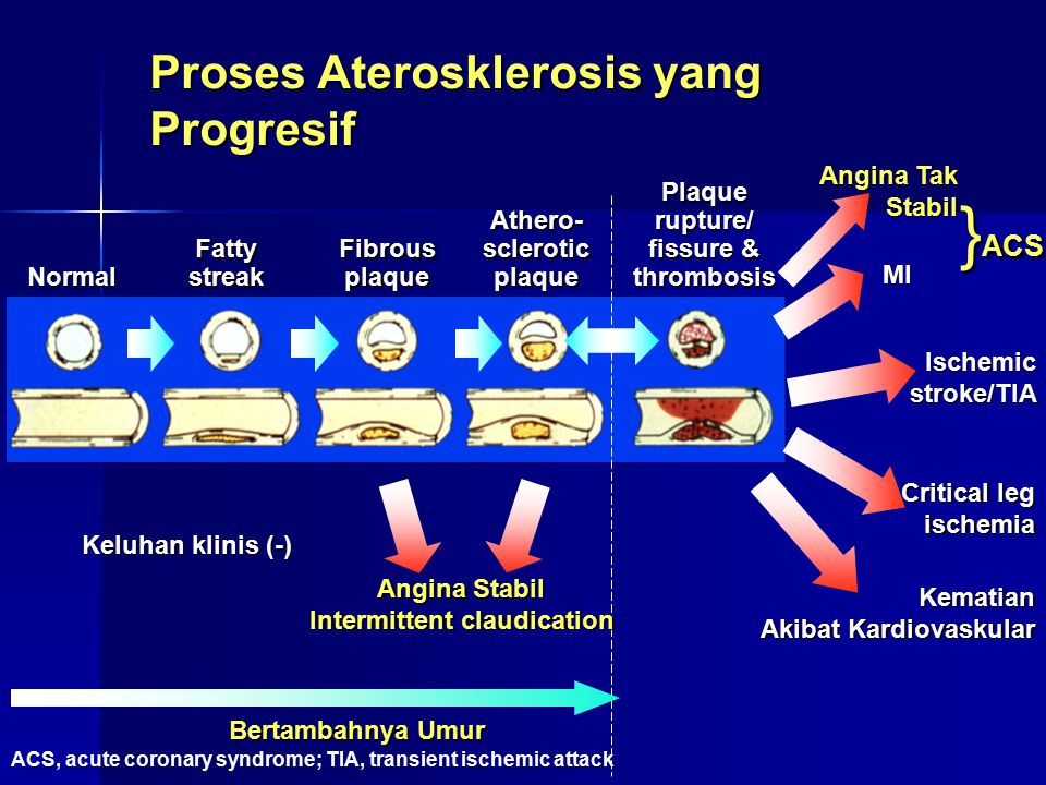 Proses Aterosklerosis yang Progresif