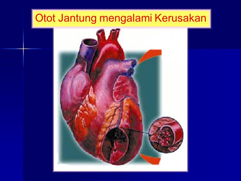 Otot Jantung mengalami Kerusakan