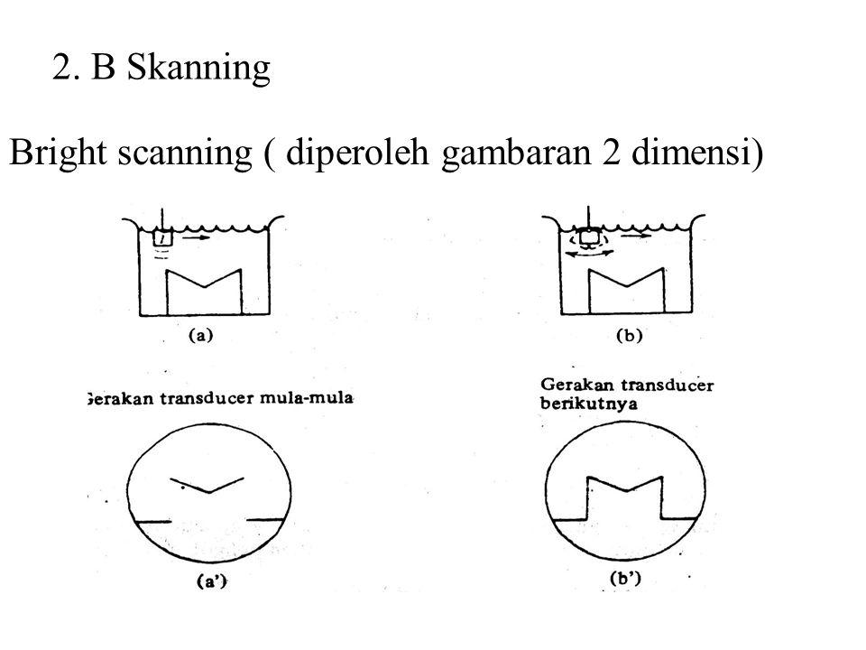 2. B Skanning Bright scanning ( diperoleh gambaran 2 dimensi)