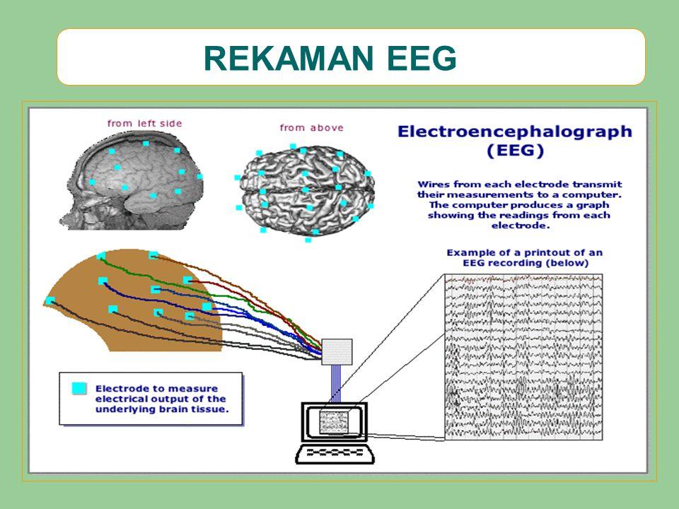 REKAMAN EEG