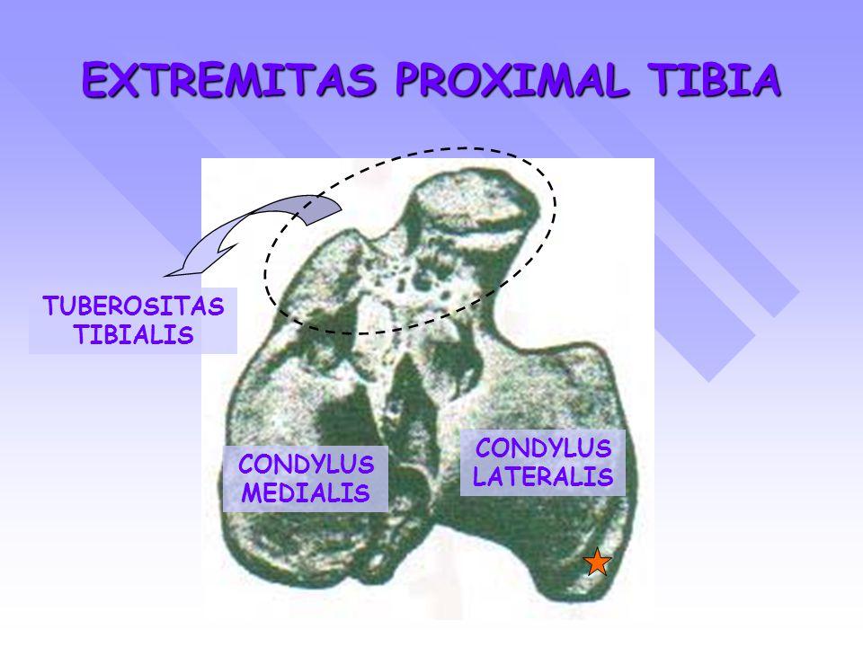 EXTREMITAS PROXIMAL TIBIA