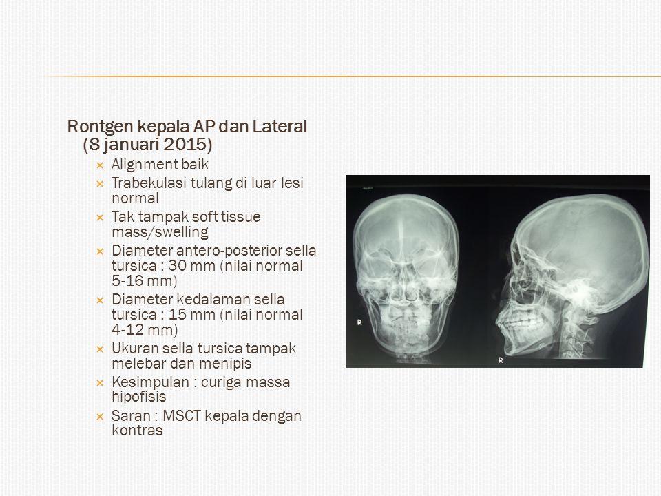 Rontgen kepala AP dan Lateral (8 januari 2015)