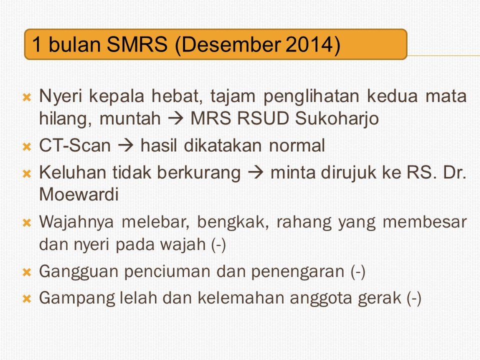 1 bulan SMRS (Desember 2014) Nyeri kepala hebat, tajam penglihatan kedua mata hilang, muntah  MRS RSUD Sukoharjo.