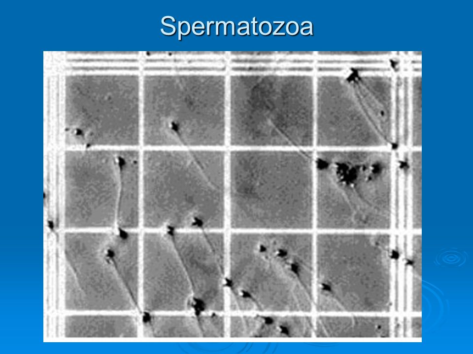 Spermatozoa