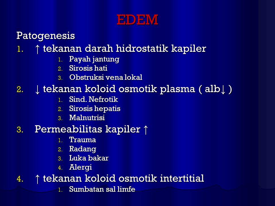 EDEM Patogenesis ↑ tekanan darah hidrostatik kapiler