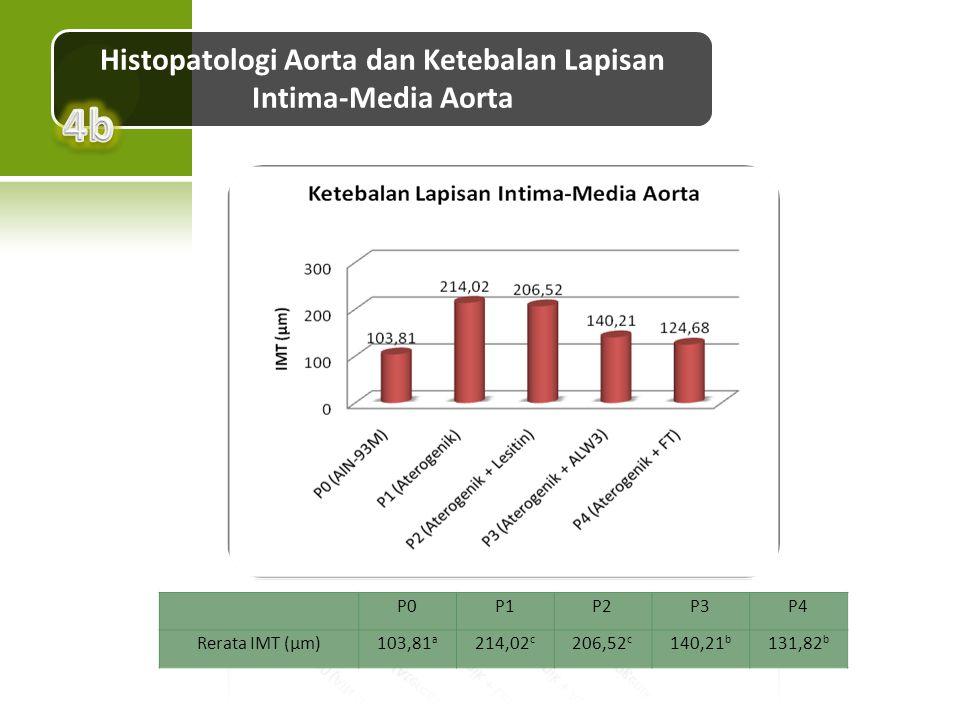 Histopatologi Aorta dan Ketebalan Lapisan Intima-Media Aorta