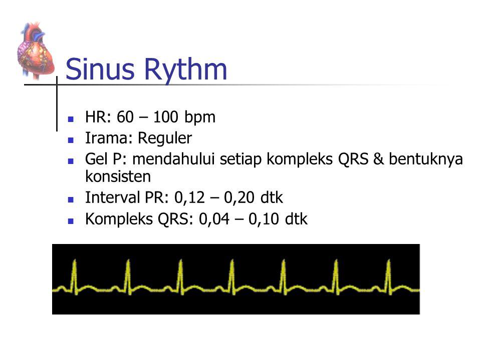 Sinus Rythm HR: 60 – 100 bpm Irama: Reguler