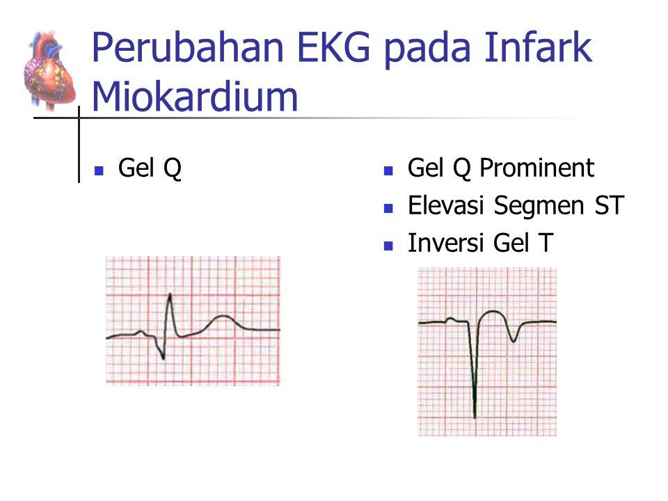Perubahan EKG pada Infark Miokardium
