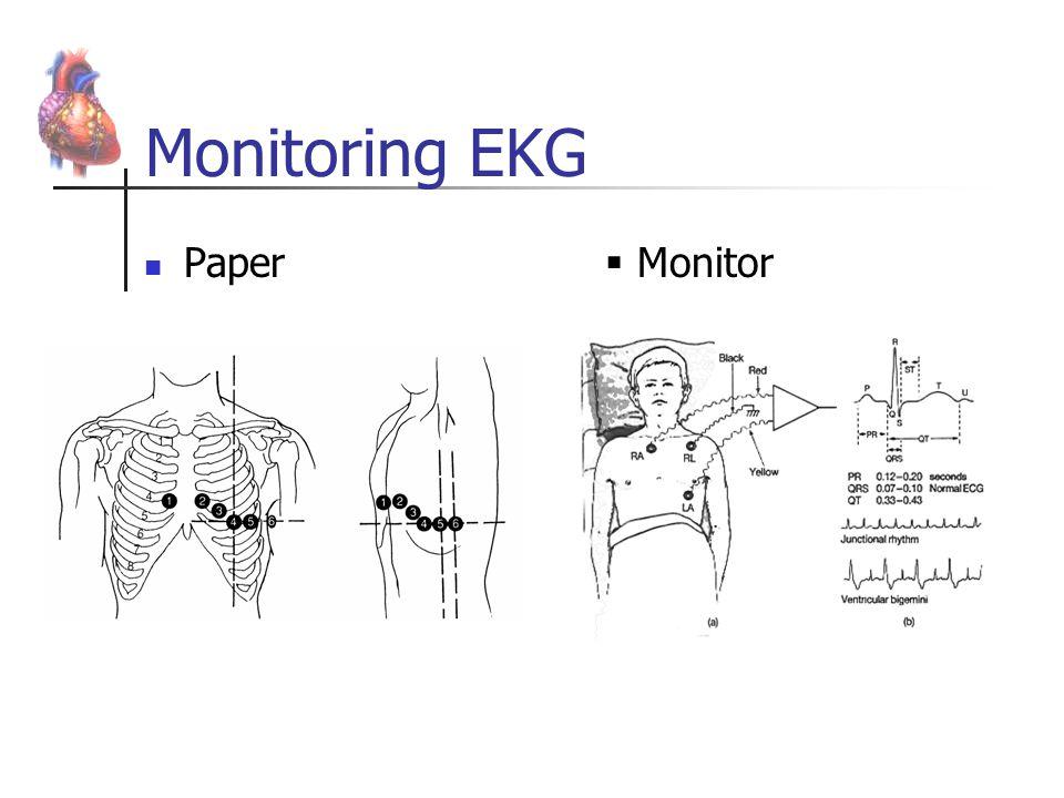 Monitoring EKG Paper Monitor