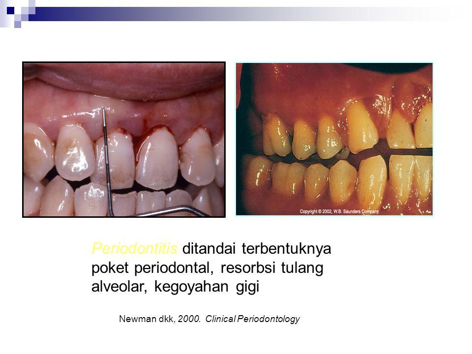 Periodontitis ditandai terbentuknya poket periodontal, resorbsi tulang alveolar, kegoyahan gigi
