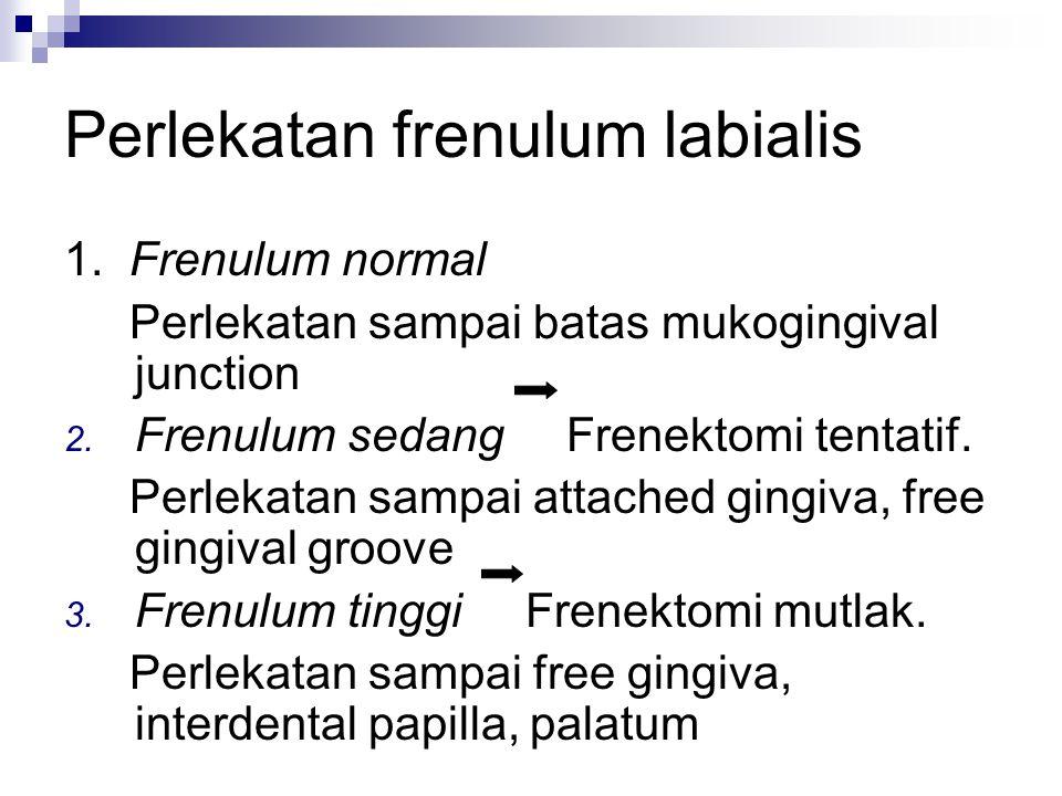 Perlekatan frenulum labialis