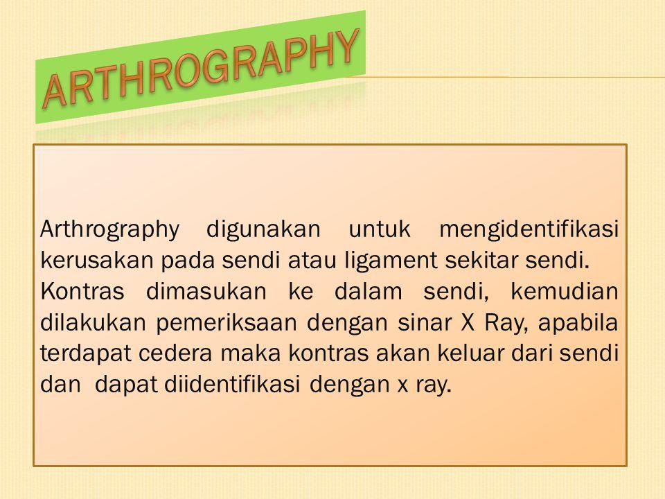 ARTHROGRAPHY Arthrography digunakan untuk mengidentifikasi kerusakan pada sendi atau ligament sekitar sendi.
