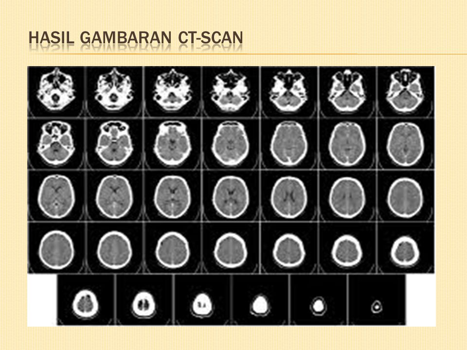Hasil gambaran CT-scan