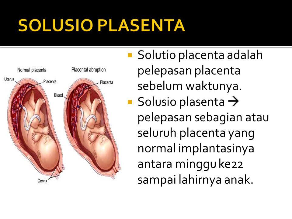 SOLUSIO PLASENTA Solutio placenta adalah pelepasan placenta sebelum waktunya.