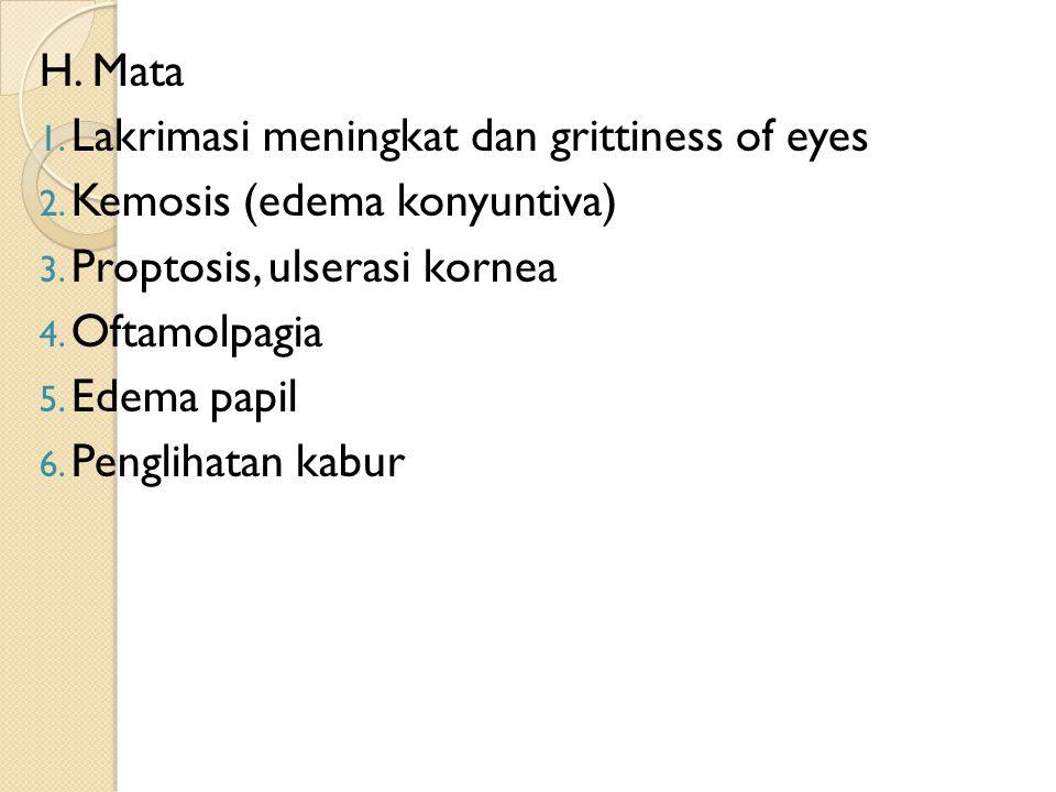 H. Mata Lakrimasi meningkat dan grittiness of eyes. Kemosis (edema konyuntiva) Proptosis, ulserasi kornea.