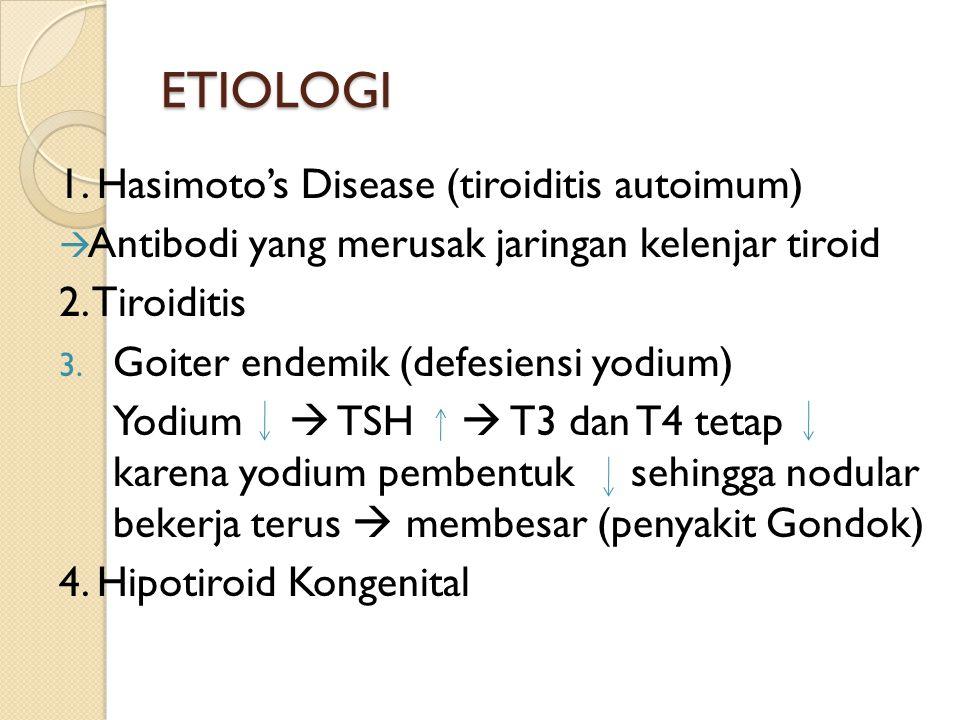 ETIOLOGI 1. Hasimoto's Disease (tiroiditis autoimum)