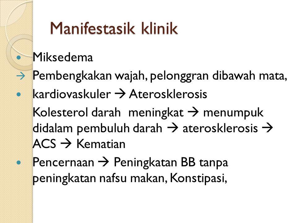 Manifestasik klinik Miksedema