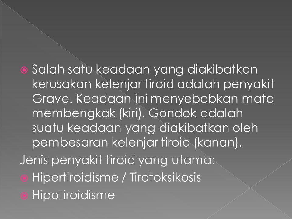 Salah satu keadaan yang diakibatkan kerusakan kelenjar tiroid adalah penyakit Grave. Keadaan ini menyebabkan mata membengkak (kiri). Gondok adalah suatu keadaan yang diakibatkan oleh pembesaran kelenjar tiroid (kanan).