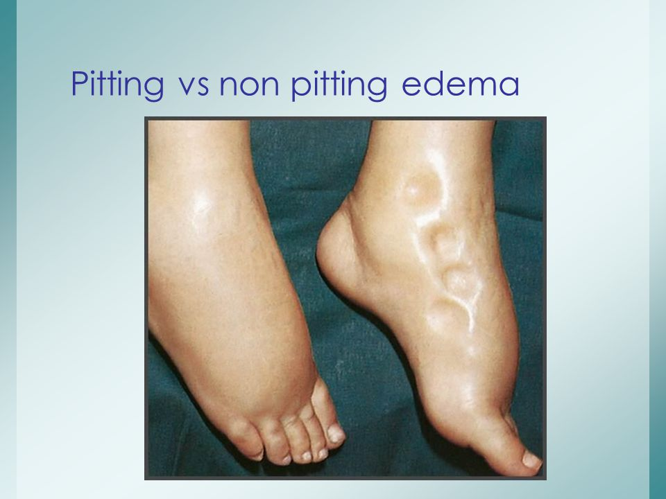 Pitting vs non pitting edema