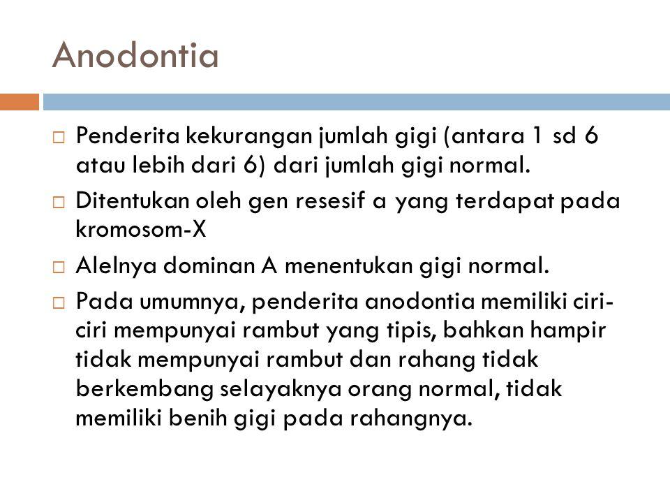 Anodontia Penderita kekurangan jumlah gigi (antara 1 sd 6 atau lebih dari 6) dari jumlah gigi normal.