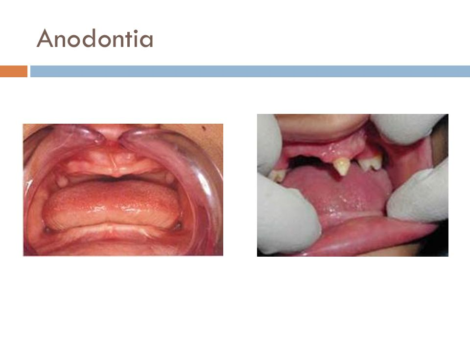 Anodontia