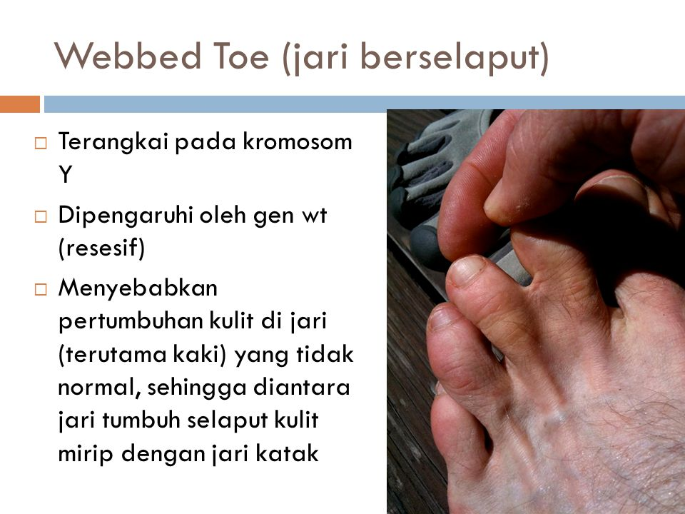 Webbed Toe (jari berselaput)