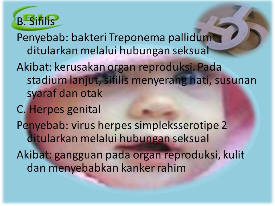B. Sifilis Penyebab: bakteri Treponema pallidum ditularkan melalui hubungan seksual.