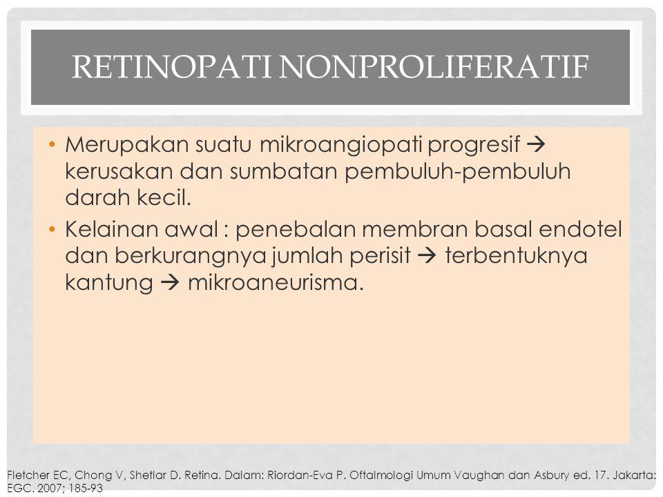 Retinopati Nonproliferatif