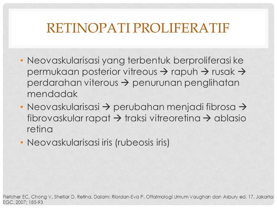 Retinopati Proliferatif