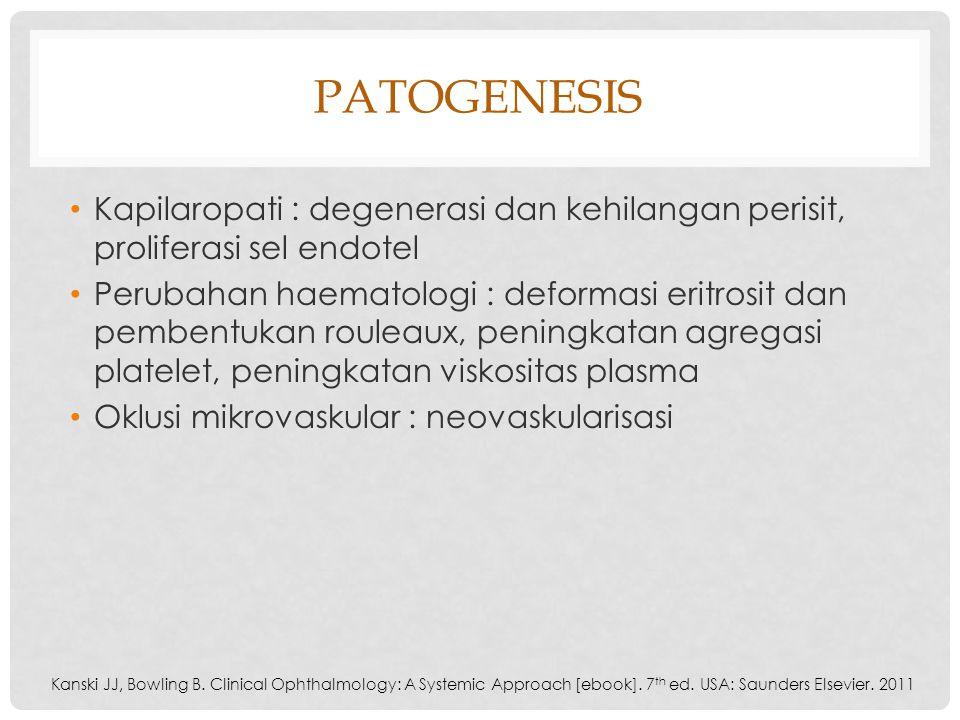 Patogenesis Kapilaropati : degenerasi dan kehilangan perisit, proliferasi sel endotel.