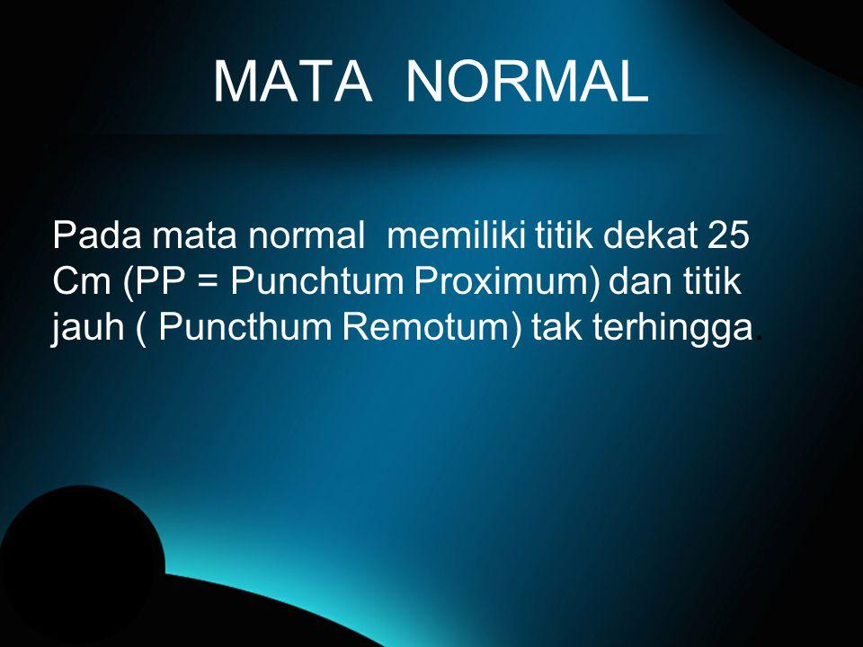 MATA NORMAL Pada mata normal memiliki titik dekat 25 Cm (PP = Punchtum Proximum) dan titik jauh ( Puncthum Remotum) tak terhingga.