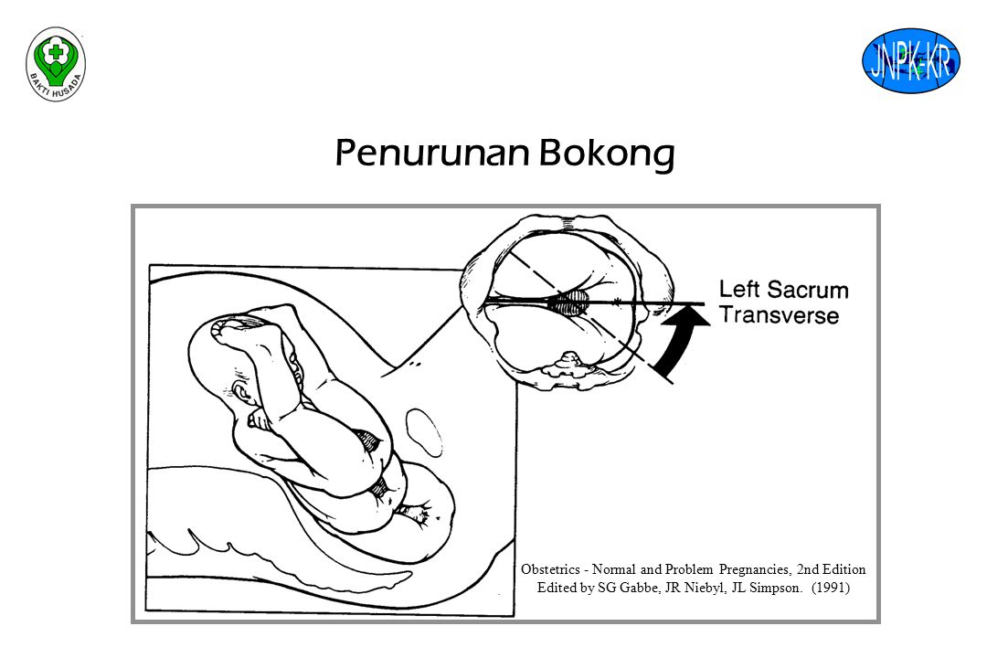 Penurunan Bokong Obstetrics - Normal and Problem Pregnancies, 2nd Edition.