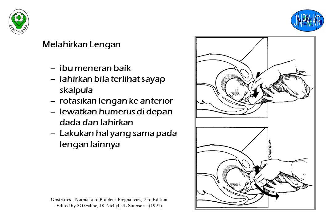 lahirkan bila terlihat sayap skalpula rotasikan lengan ke anterior