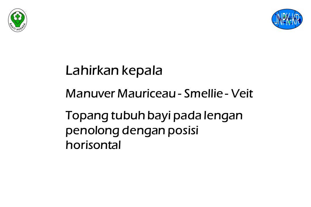 Lahirkan kepala Manuver Mauriceau - Smellie - Veit