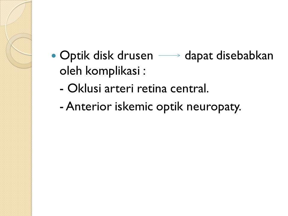 Optik disk drusen dapat disebabkan oleh komplikasi :
