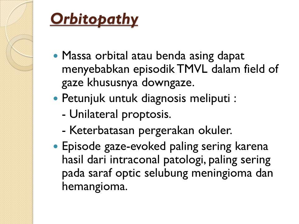 Orbitopathy Massa orbital atau benda asing dapat menyebabkan episodik TMVL dalam field of gaze khususnya downgaze.