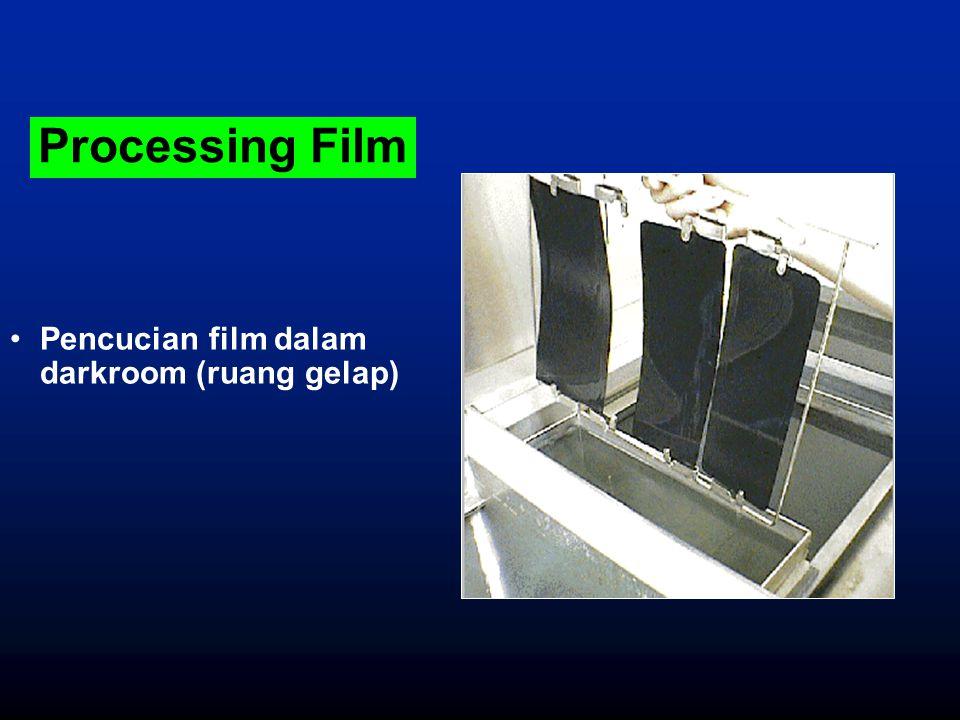Processing Film Pencucian film dalam darkroom (ruang gelap)