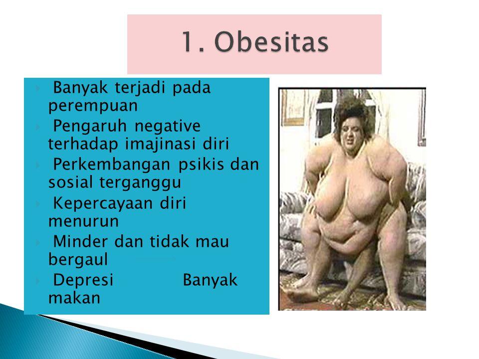 1. Obesitas Banyak terjadi pada perempuan