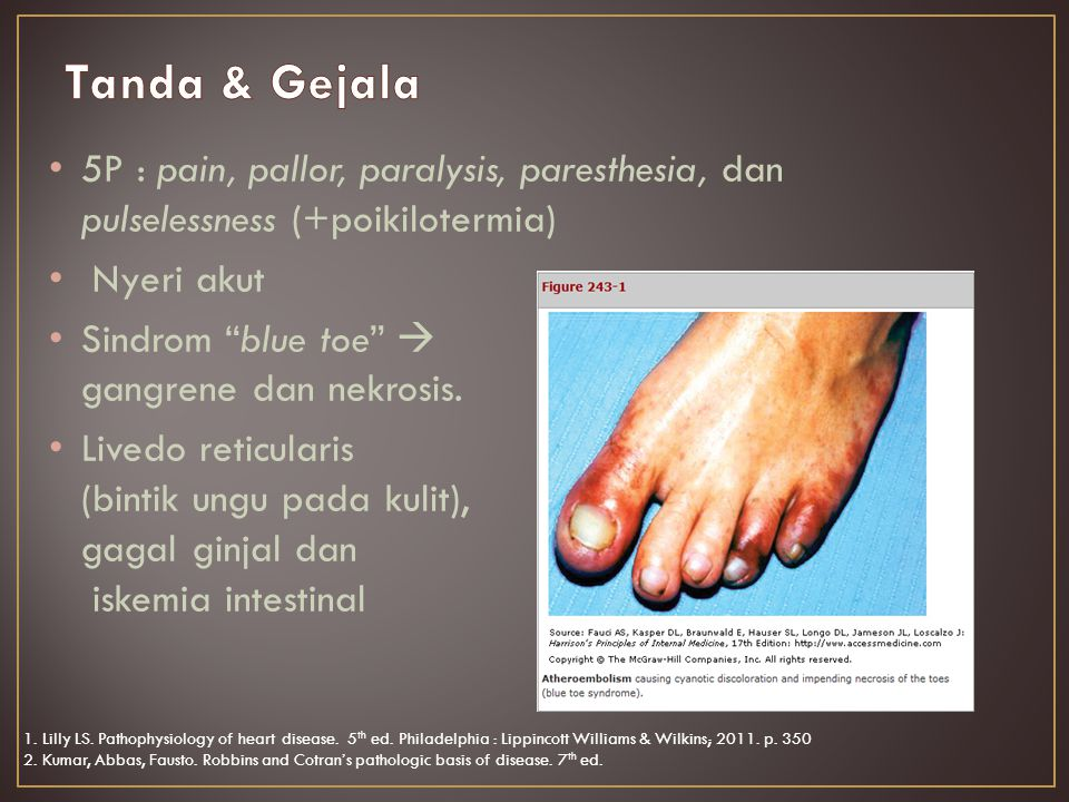 Tanda & Gejala 5P : pain, pallor, paralysis, paresthesia, dan pulselessness (+poikilotermia) Nyeri akut.
