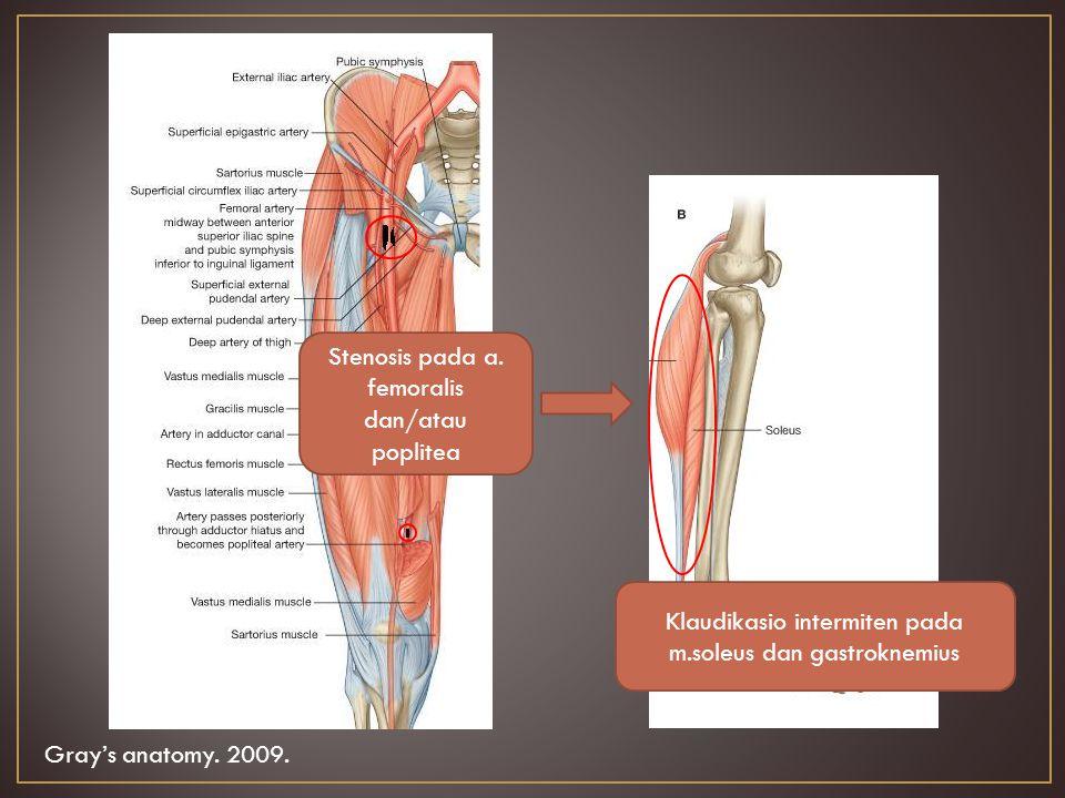 Stenosis pada a. femoralis dan/atau poplitea