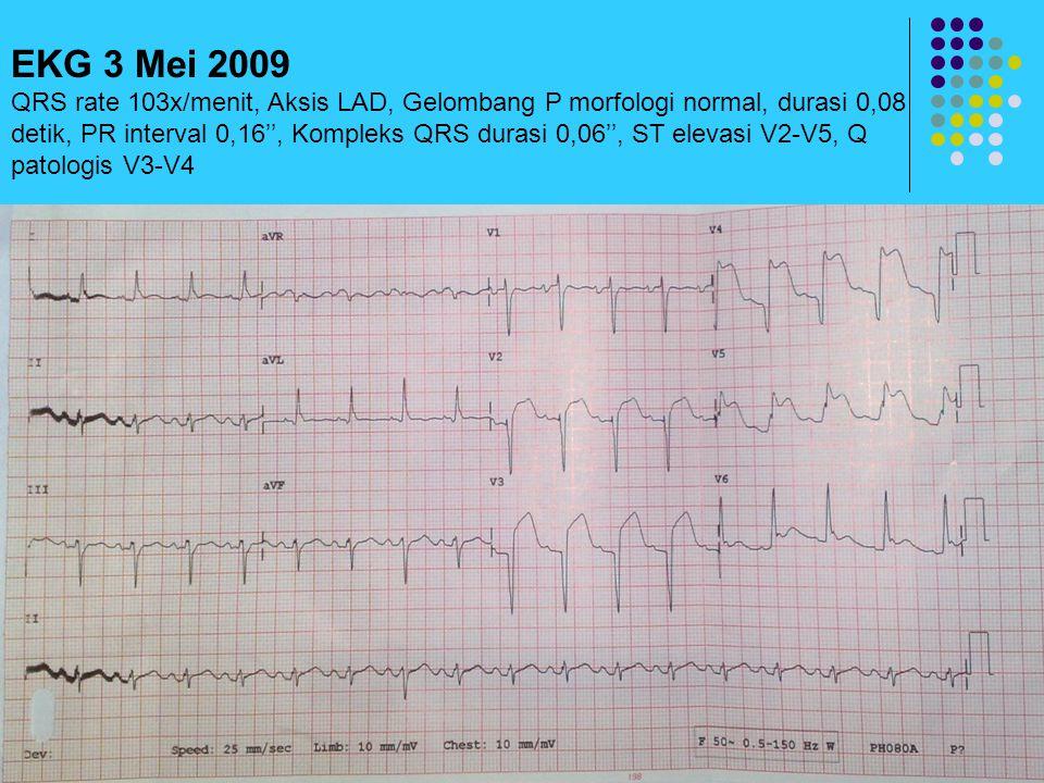 EKG 3 Mei 2009