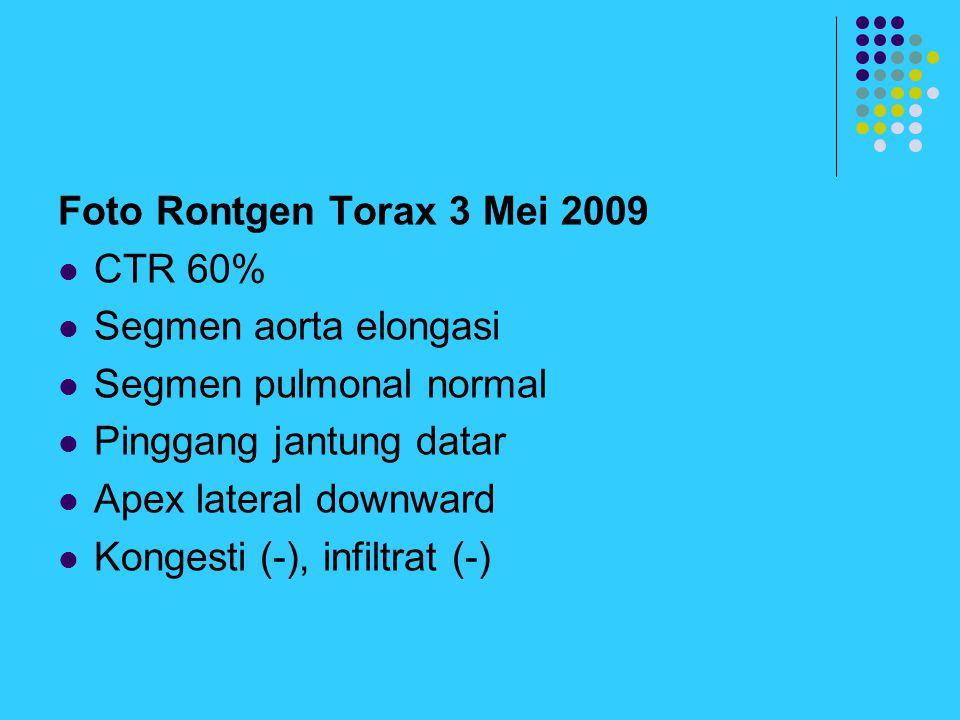 Foto Rontgen Torax 3 Mei 2009 CTR 60% Segmen aorta elongasi. Segmen pulmonal normal. Pinggang jantung datar.