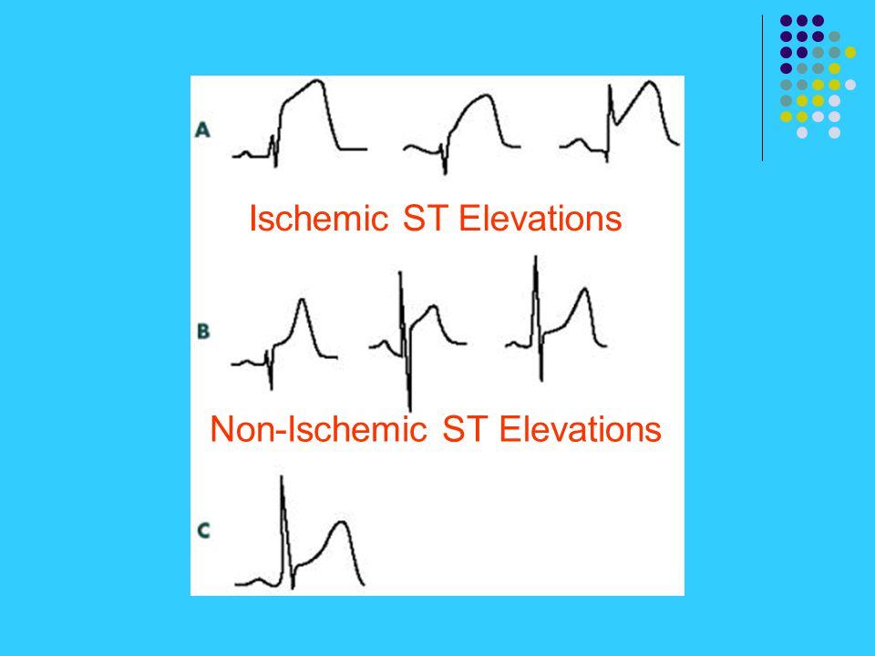 Ischemic ST Elevations