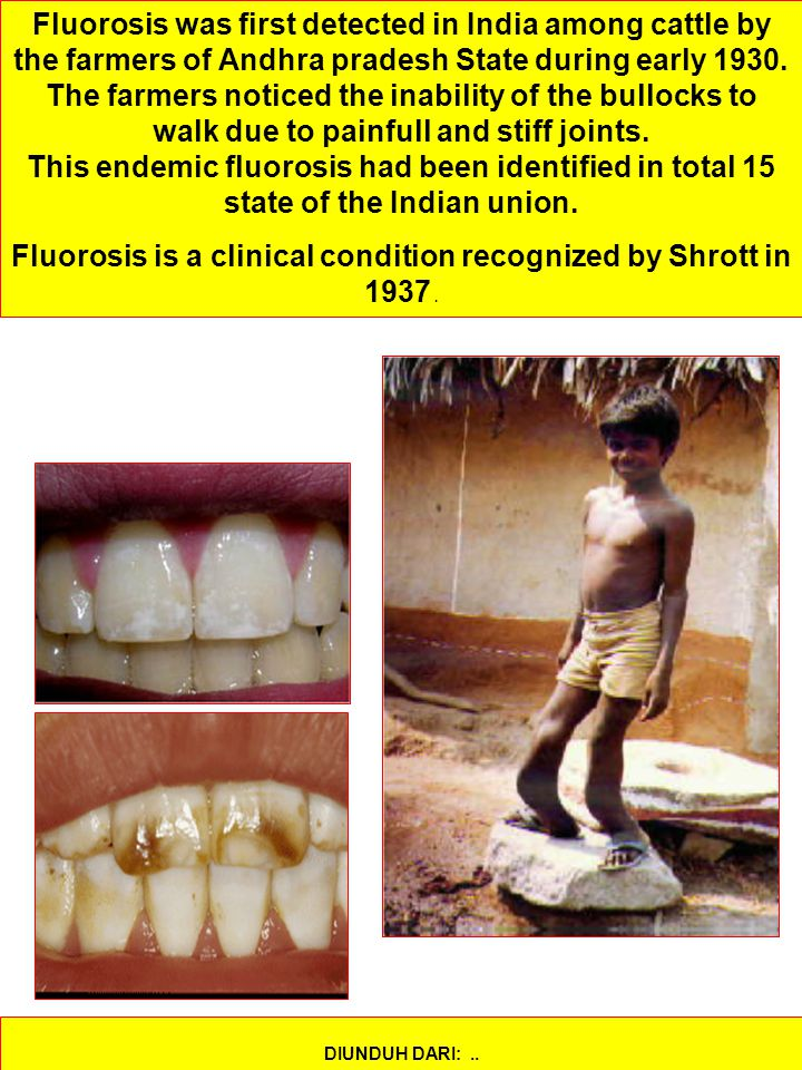Fluorosis is a clinical condition recognized by Shrott in 1937 .
