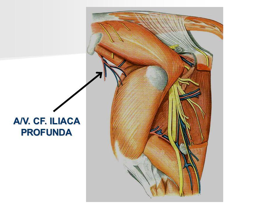 A/V. CF. ILIACA PROFUNDA