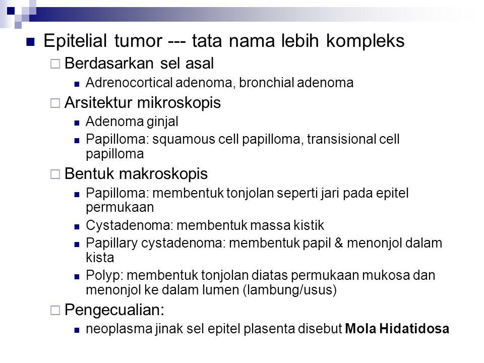 Epitelial tumor --- tata nama lebih kompleks