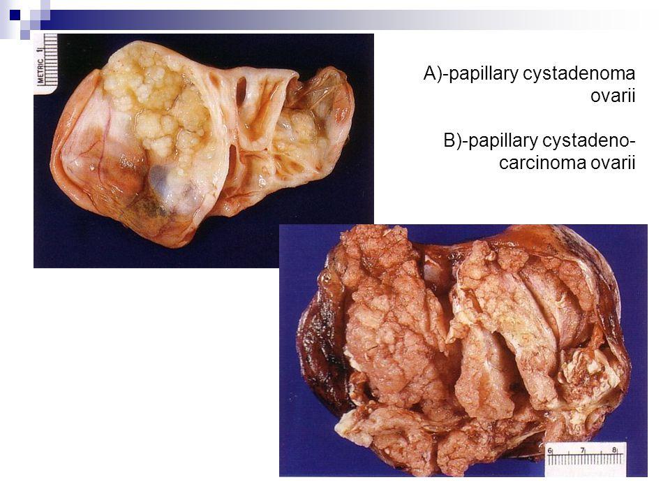 A)-papillary cystadenoma ovarii B)-papillary cystadeno- carcinoma ovarii