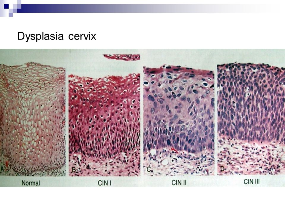 Dysplasia cervix